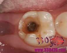 牙齿烂了一半,为何不能直接补牙?