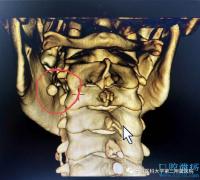 """涎石症:小伙颌下疼痛难忍,原来舌头下长""""石头"""""""