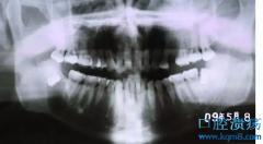阻生牙拔除术:阻生牙不拔的后果