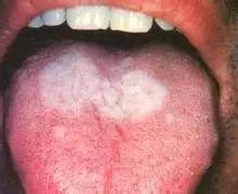 口腔舌扁平苔藓是病吗?什么症状?