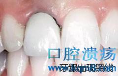 烤瓷牙引起牙龈黑线,真牙蛀牙,烤瓷牙崩瓷,牙体预备失败怎么办?