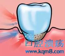 牙周治疗需要注意哪些方面?