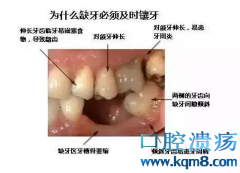 牙齿缺失不补牙都有哪些危害?