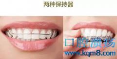 牙齿保持器有什么用?都有哪些类型?