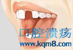 缺失一颗牙竟然能使全口牙齿都掉落?!