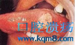 口腔癌是什么吗?