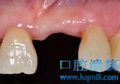 牙齿粘结修复容易出现的问题都有哪些?