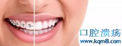 都30多岁了做牙齿矫正来得及吗?中年人做口腔正畸会有什么危害?