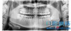 一次性微创拔除阻生智齿+含牙囊肿摘除术