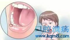 口腔溃疡频繁发?按摩劳宫穴与照海穴可有效治疗口腔溃疡