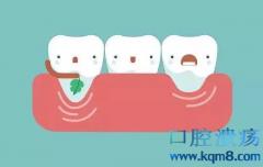 牙龈健康指数评测方法
