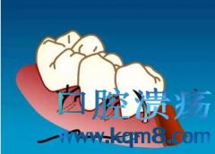 牙周缝合常用方法:垂直褥式,单侧连续,单乳头悬吊,双侧连续,双乳头悬吊,水平褥式,牙间8字形,牙间间断缝合