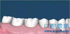 四十多年没刷牙,牙科医生实拍医院最强牙结石患者
