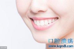 牙斑渍的5种洁白牙齿的方法