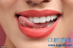 齿石和齿垢影响牙齿美观如何祛除?