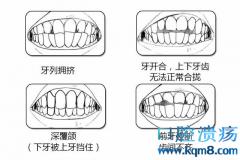 对图自测,你的牙齿是否真的需要矫正吗?
