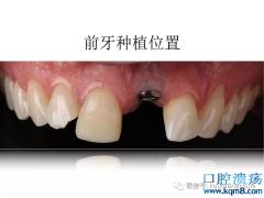 前牙种植体理想的植入位置是哪里?