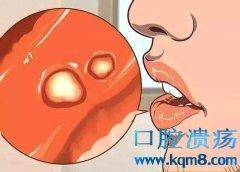口腔溃疡那些食物需要忌口?