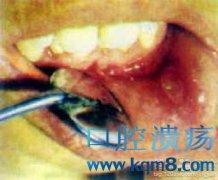 口腔溃疡的临床症状表现