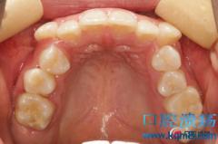 重度拥挤不拔牙矫正及磨牙舌向阻生矫正