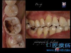 C6大面积龋齿缺损,聚合瓷嵌体修复