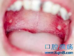 口腔溃疡频繁出现这5种症状,当心引发口腔癌