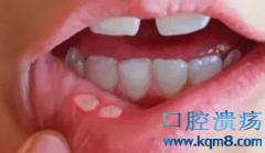 女子口腔溃疡没在意,结果被确诊为舌癌!