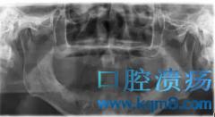 76岁高龄老人通过口腔种植重新拥有一口好牙!
