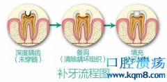 牙洞越补越大怎么办?请使用嵌体补牙