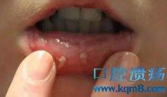 """口腔溃疡怎么办?教你一个""""土办法""""治疗,效果不比吃药差"""