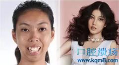 泰国选丑节目泰国妹子Namtip Hingong前后对比照爆红
