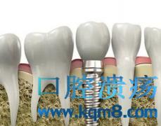 种植牙与假牙区别都有哪些?