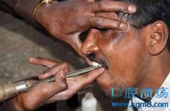 印度街头游医 拔牙用钳子不打止痛针 摆摊就能开工