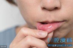 口腔溃疡怎么治疗?