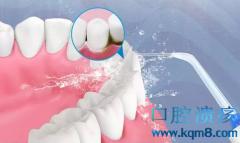 如何判断自己要不要洗牙?