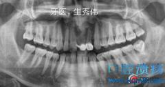 种植牙齿需要多长时间恢复?