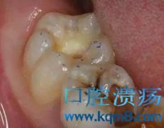 龋齿补牙树脂充填护理操作流程