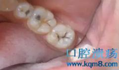 浅龋,中龋,深龋,急性牙髓炎,急性根尖周炎,残冠残根,拔牙,你珍惜你的牙齿了吗?