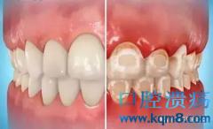 戴了牙套该怎么维护口腔卫生