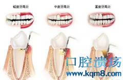 牙周病的危害及牙周病的早期症状