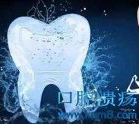 洗牙有助于口腔健康,洗牙前都有哪些注意事项?