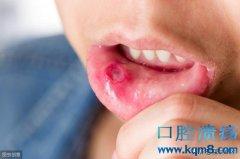 口腔溃疡的出现,多与这2个因素有关,很多人都中招