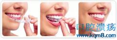 口腔正畸用的隐形牙套怎么做出来的?