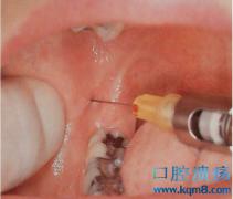 口腔麻醉技术操作流程及要点