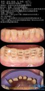 四环素牙瓷贴面修复