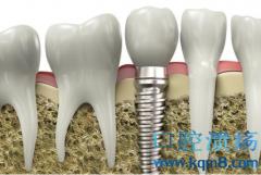 口腔种植中骨增量技术的应用