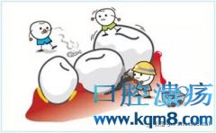 牙结石自我检查及预防方法