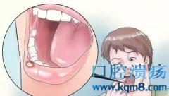 口腔溃疡敷上它,当天见效,第二天愈合!