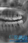 龋齿铸瓷嵌体根管治疗