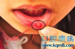 口腔溃疡反反复复是怎么回事?